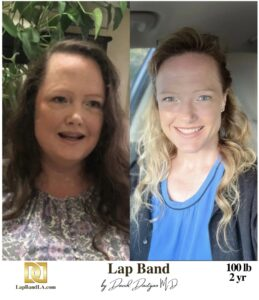 ≪H1 Class=&Quot;Hide_09&Quot;≫Bariatric Surgery ≪Br≫Patient Testimonial - Karen.≪/H1≫ | Success_Storie | The Weight Loss Surgery Center Of Los Angeles | Dr. David Davtyan