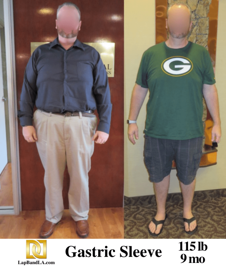 Bariatric Surgery | Before &Amp; After Photos | Galleries | The Weight Loss Surgery Center Of Los Angeles | Dr. David Davtyan