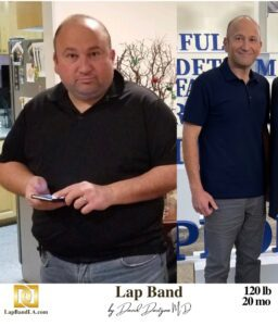 ≪H1 Class=&Quot;Hide_09&Quot;≫Bariatric Surgery ≪Br≫Patient Testimonial - Karen.≪/H1≫   Success_Storie   The Weight Loss Surgery Center Of Los Angeles   Dr. David Davtyan