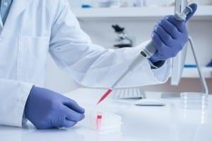 platelet rich plasma in laboratory