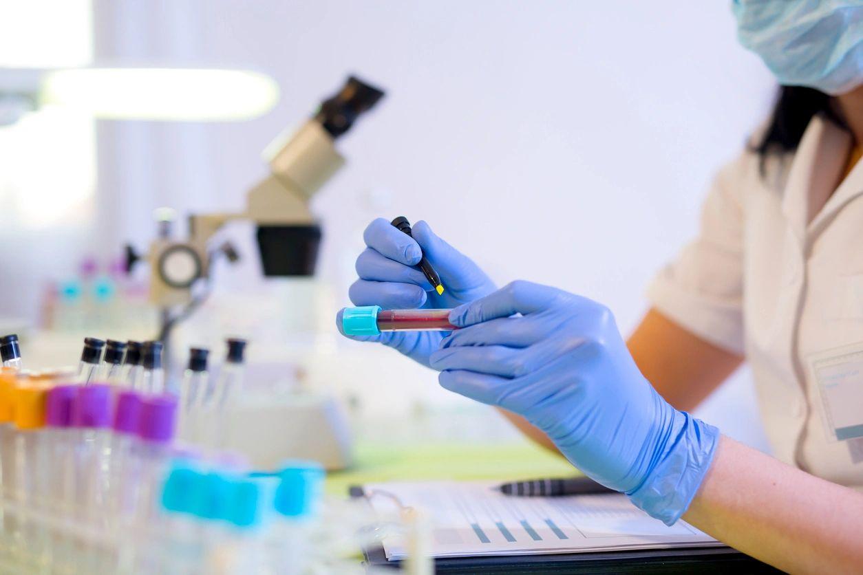 Minsa reporta 1,464 nuevos casos de Covid-19 en junio