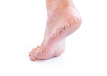 Cracked Heels – How to Take Care of Them