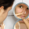How to Get Rid of Face Acne