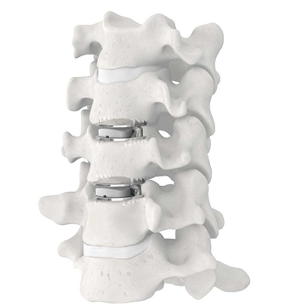 MobiC spine disc replacement