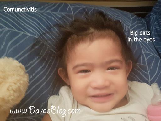 baby-conjunctivities-red-sore-eyes-muta