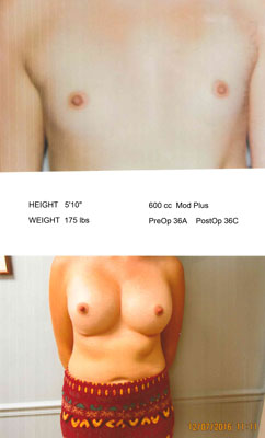 Bilateral Breast Augmentation with Dr. Saunders