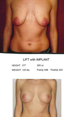 Mastopexy Lift with Implant