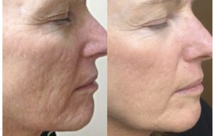 prp acne scar removal