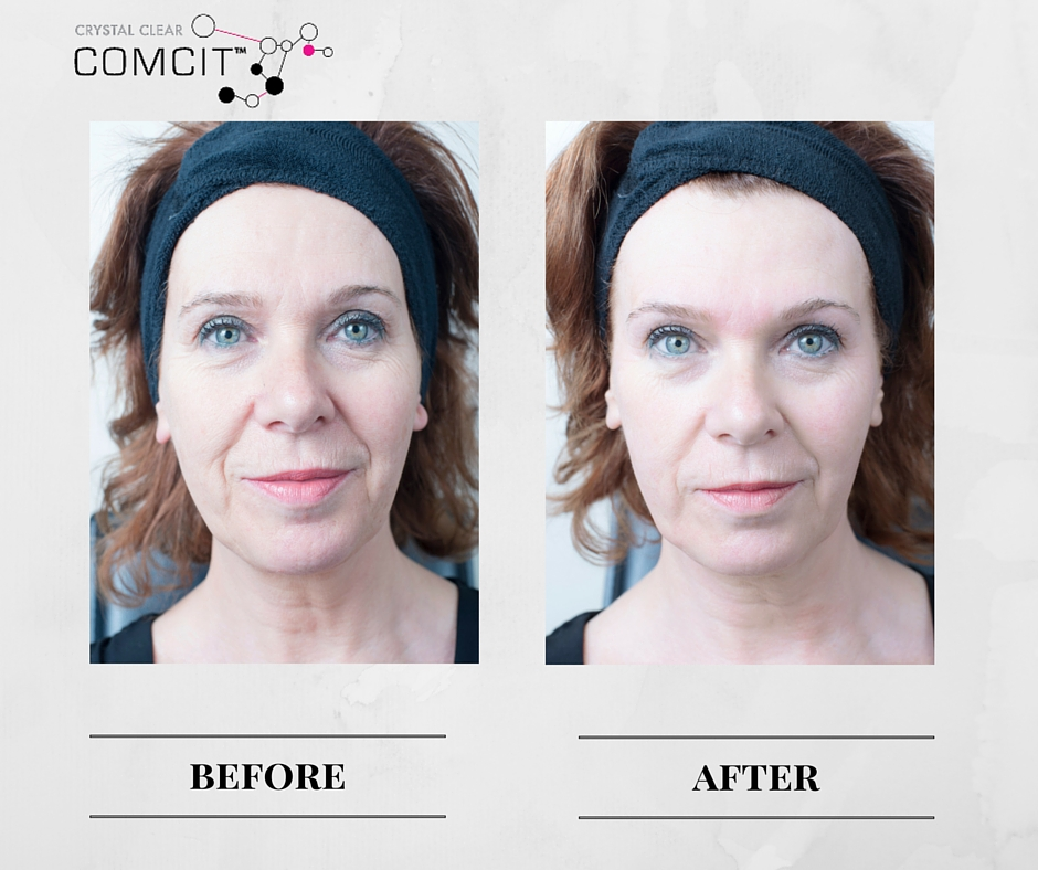 Crystal Clear COMCIT Before And After