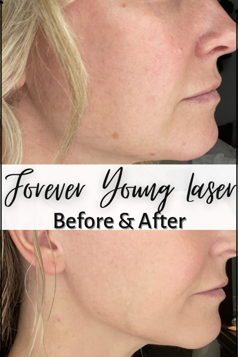 Forever Young Laser Before And After Results featured by top Houston beauty blogger, Haute & Humid