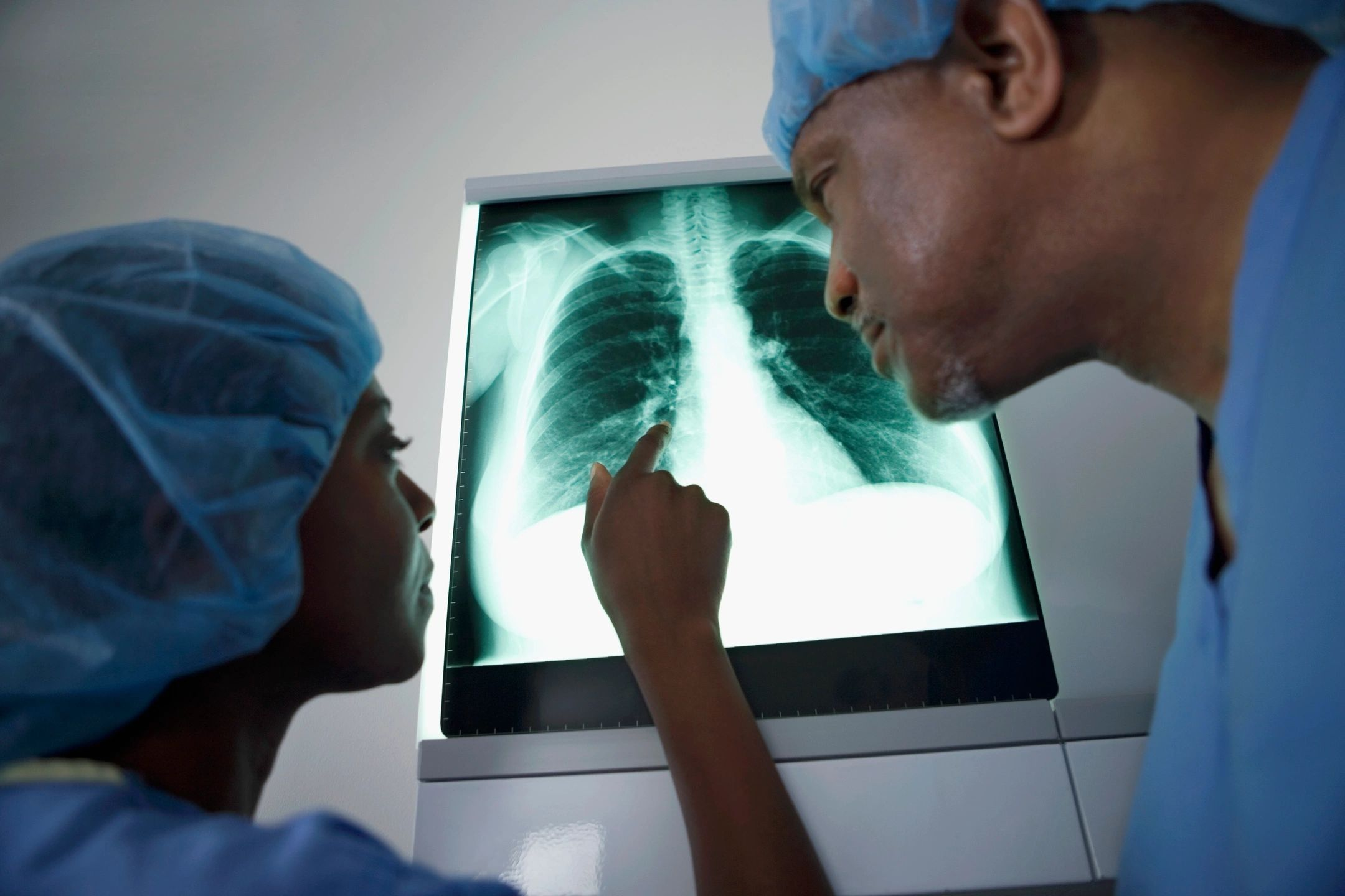 Coronavirus Lung Issues
