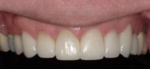 Sterling Ridge Cosmetic & Family Dentistry Erica K. Cummings, DDS, MAGD