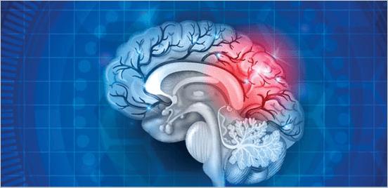 Concussion-Program