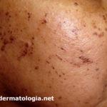 dermatose papulosa