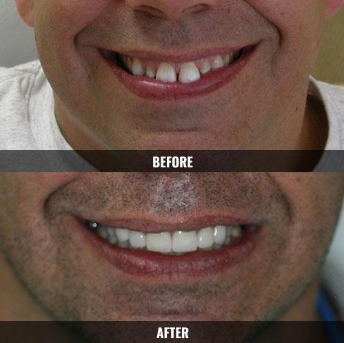 before-after-veneers