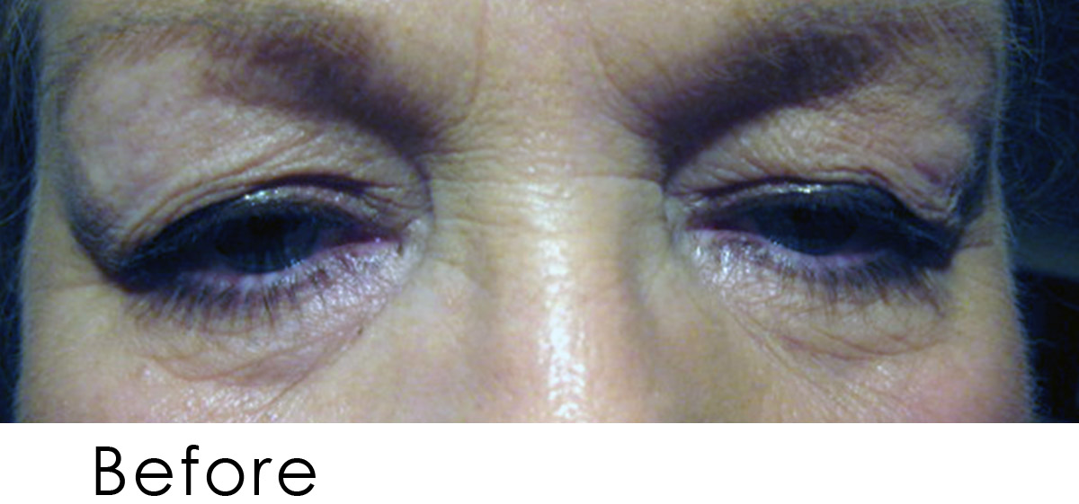 Eyelid Rejuv Before