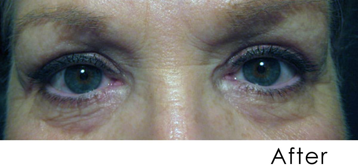 Eyelid rejuv after