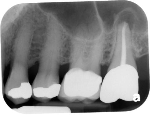 maxillary sinus septum