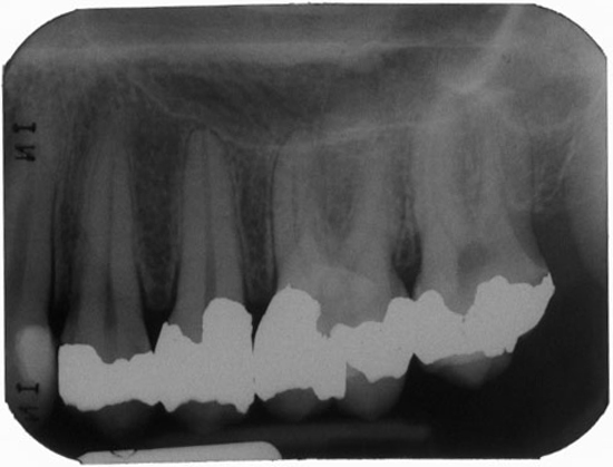 Floor of the nose periapical