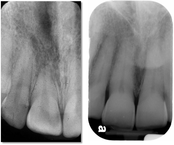 Maxillary central incisors periapical radiographs. Left - note that the root and crown appear to be the same length on the radiograph. Right - note the root appears to be twice the length of the crown which is average for this tooth.