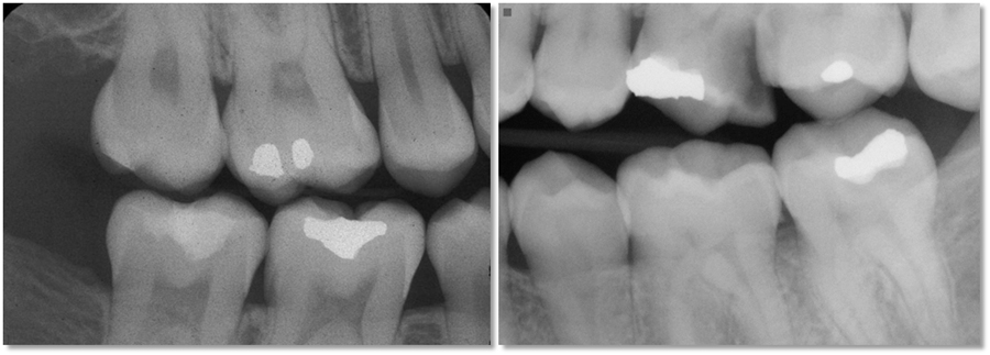 Left - right molar bitewing radiograph showing a minimum of 2 mm of bone height in maxilla and mandible interproximally and 2 mm of bone distal to the second molars. Right - 2 mm of bone not visualized in maxilla.