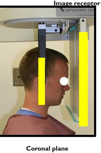 posteroanterior skull radiograph positioning 1