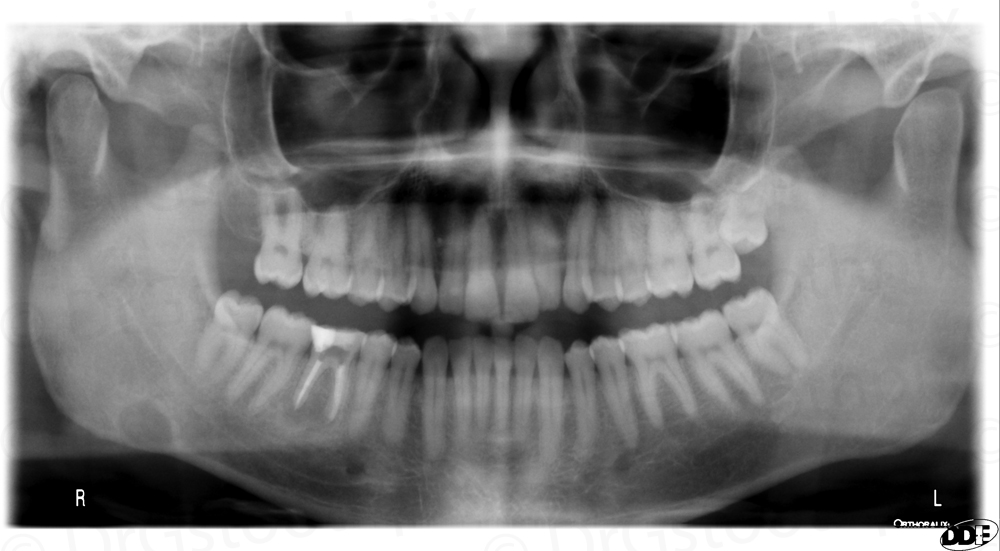 Stafne Defect - right, angle of mandible, inferior to inferior alveolar nerve canal, round.