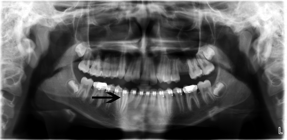 Pantomograph showing transposition of mandibular right canine and lateral incisor corrected with orthodontics.