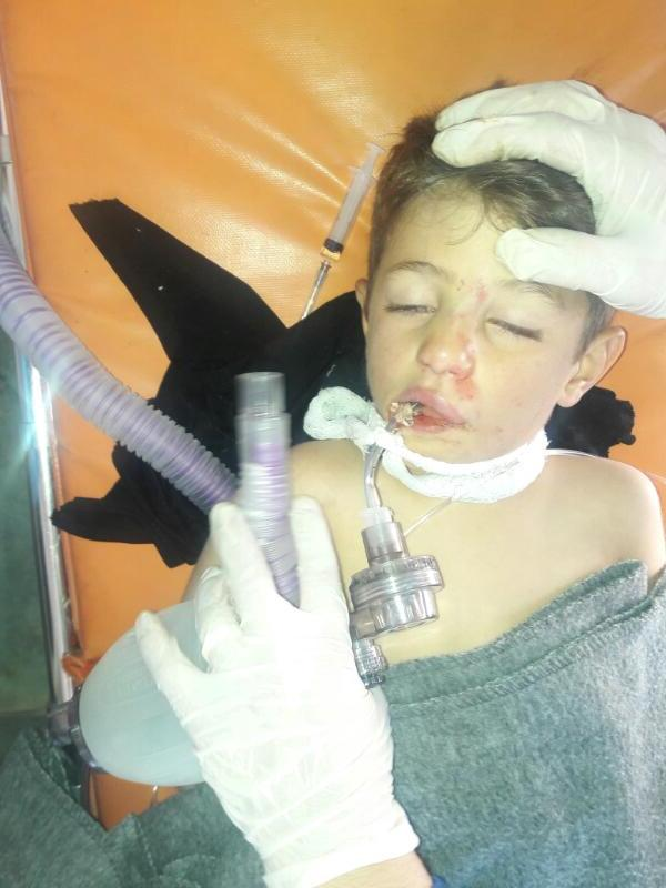 SRD Condemns Chemical Attacks in Idleb, Seeks Greater Protection for Syrian Civilians