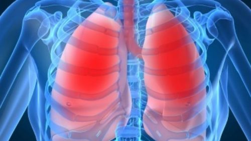 Natural Remedy for Treating Bronchitis, Asthma and Chronic Lung Disease
