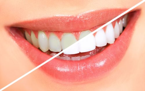 White your Teeth