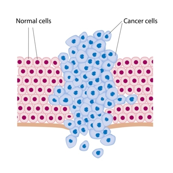 The Way to Prevent Cancer
