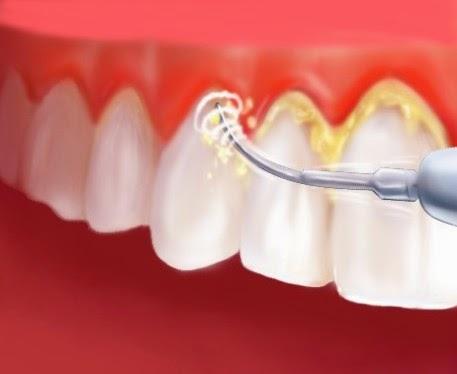 How to Remove Dental Plaque