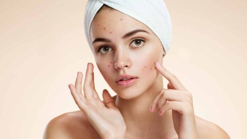 These Foods Treat Acne – Start Consuming Them Now