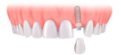 Say Goodbye to the Dental Implants, Here's How to Grown your Own Teeth in 9 Weeks