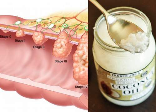 In Less Than 3 Days, Kill 93% of Colon Cancer With Coconut Oil