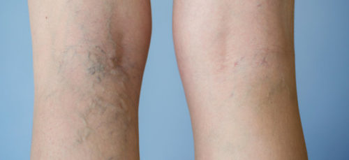 Use this Ingredient and Get Rid from Varicose Veins!