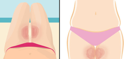 How to Use Antiperspirant Stick to Prevent Leg Friction