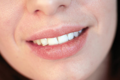 Instructions to Prevent Cold Sores Naturally and How to Treat Them