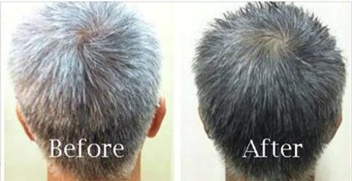 Restore Your Natural Hair Color