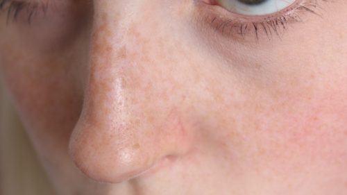 This Remedy Will Wipe out Black Spots and Make your Skin Like Baby