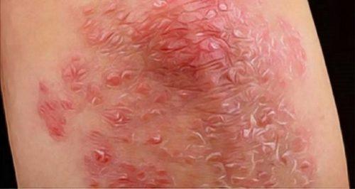 Cold Acne Fungus Psoriasis
