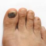 blacktoenail