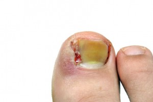 Example of ingrown toenails in Algonquin, IL