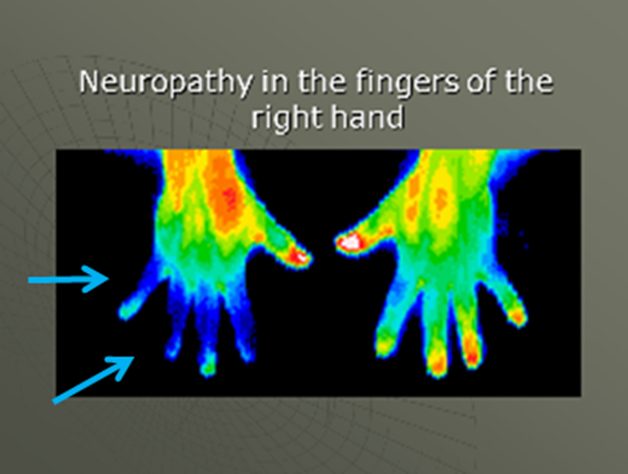 Neuropathy vs Joint Pain in Hands