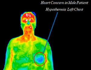 Heart Concern in Male Patient