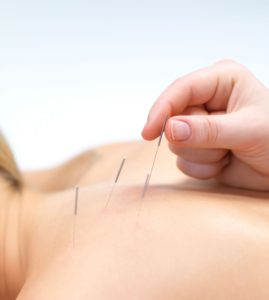 Acupuncture Tampa Area, Chiropractor Tampa, Best Acupuncture Tampa, Physiotherapy Tampa, sports medicine doctors tampa, best chiro tampa, acupuncture for headaches, benefits of acupuncture, does acupuncture work
