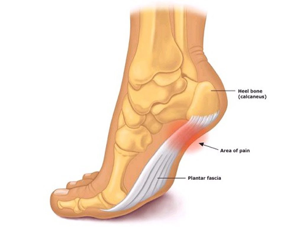 best tampa pain doctor, runners knee tampa, running pain relief tampa, how to fix running pain, how to fix plantar fasciitis, best tampa sports medicine doctor