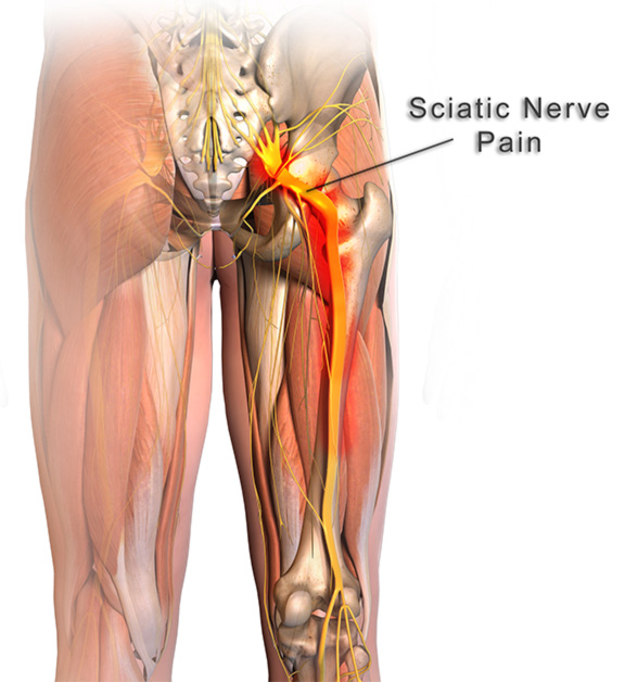 treat sciatica tampa, tampa sciatica doctor, chiropractor sciatica, sciatica tampa, sciatica pain dr tampa, tampa chiropractor sciatica