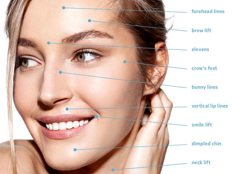 Botox + Dysport treatment sites